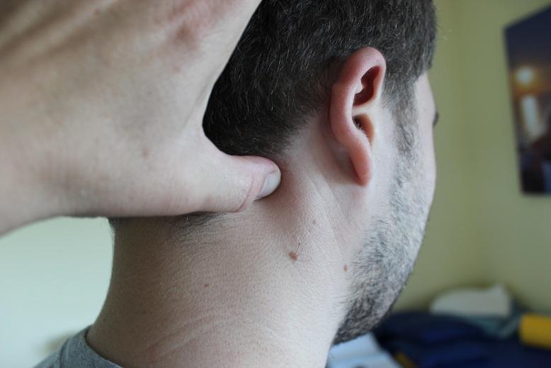 Schmerzpunkttherapie löst auch chronische Kopfschmerzen